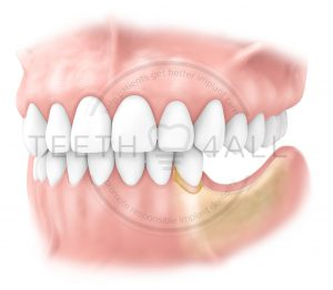 Why get dental implants? avoid mandibular bone resorption due to missing teeth