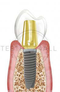 All info for patients about dental implants that are featured in Teeth4all