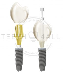 Full contour vs veneered dental implant prosthetics