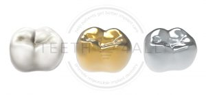 dental crown material : zironica, gold, cobalt chrome, titanium