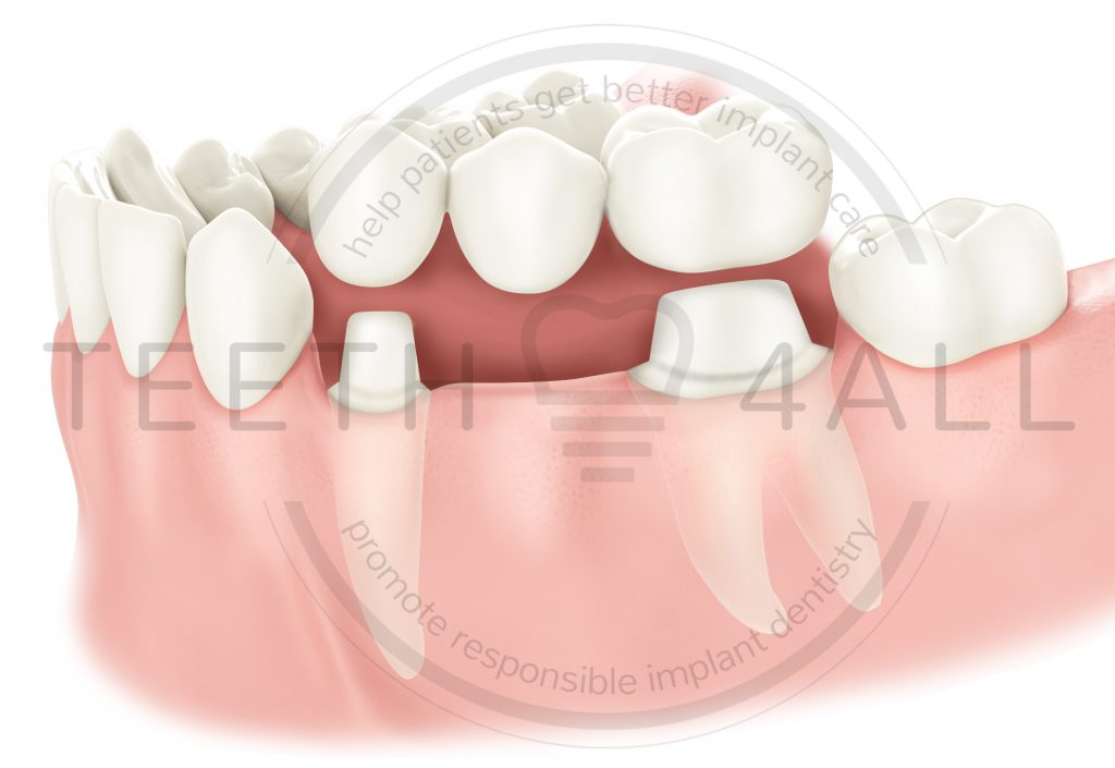 dental implant treatment options: 3-unit dental bridge zirconia