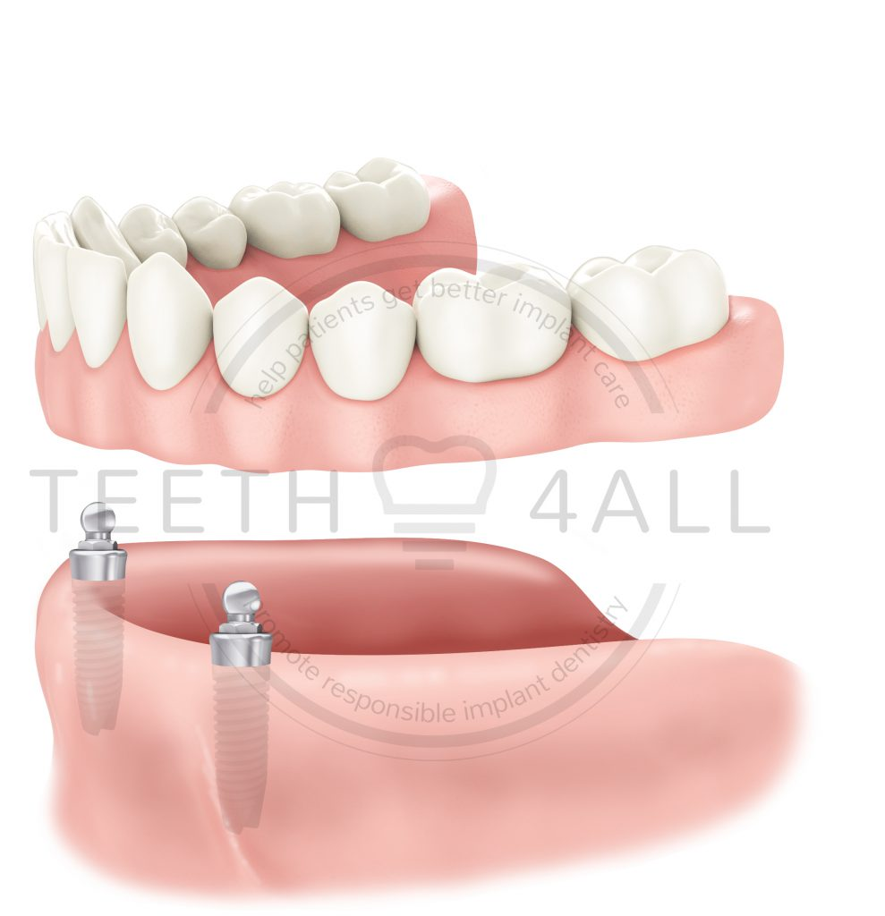 fixed-removable denture