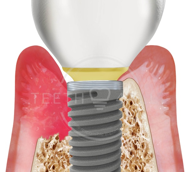 Example of complication with implant: peri-implantitis