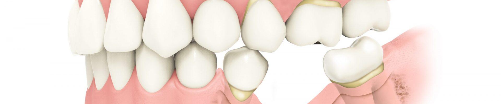 shifting teeth