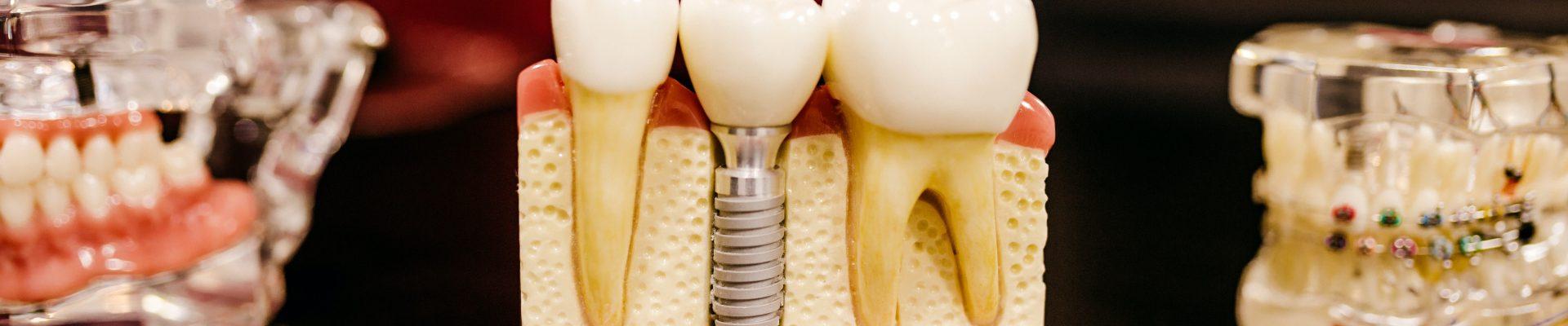 dental implant show models