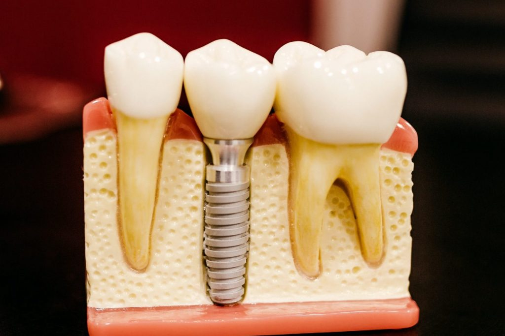 Dental implant information for patients - what is a dental implant